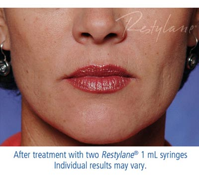Restylane® or Perlane® After