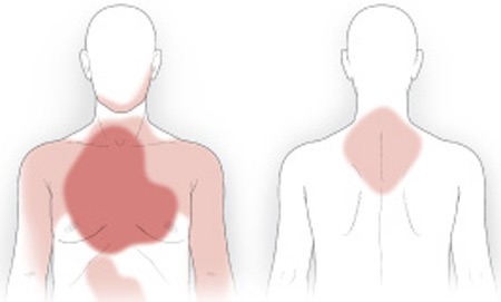 Heart attack pain diagram